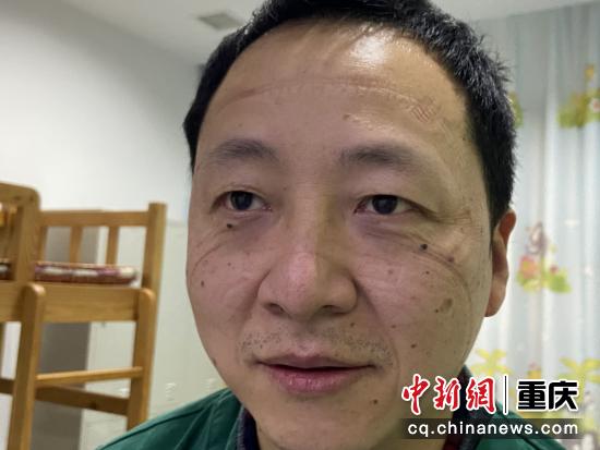 图为胡鹏教授脸上留下深深的口罩压痕。 重医附二院供图